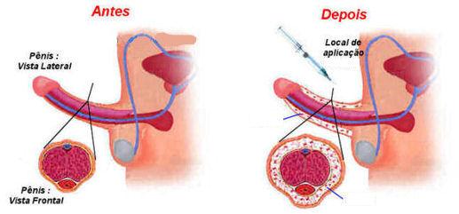 bioplastia peniana